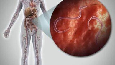 Photo of Опасность паразитов для человека: что нужно знать и предпринимать?